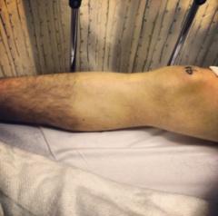 Jess's leg